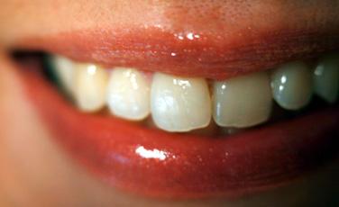 Lächeln Zahnarzt